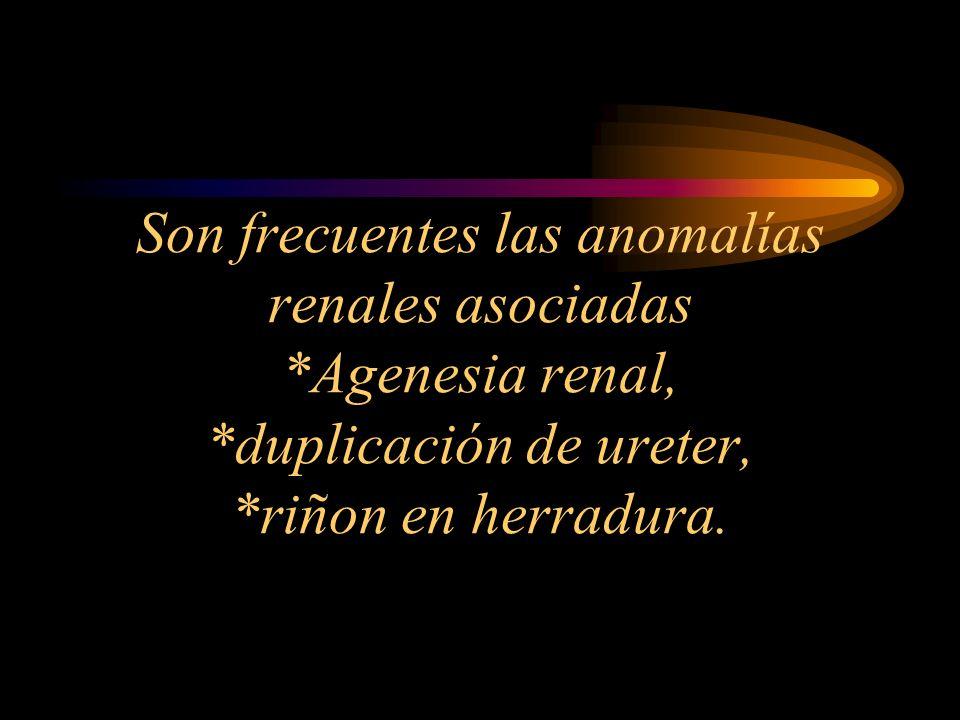Son frecuentes las anomalías renales asociadas. Agenesia renal,