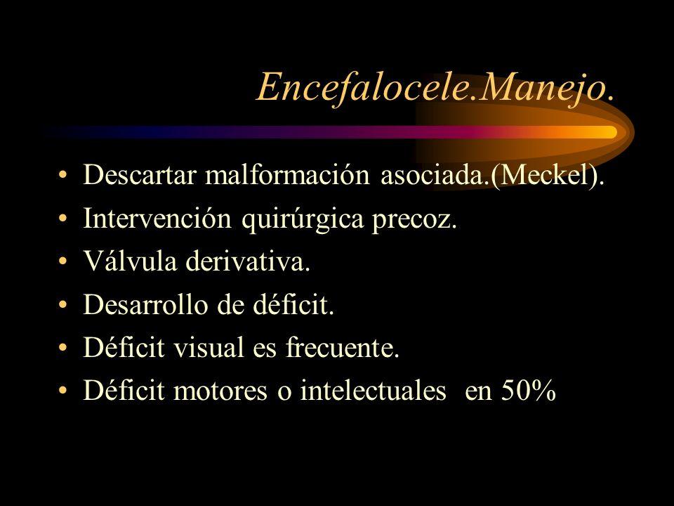 Encefalocele.Manejo. Descartar malformación asociada.(Meckel).