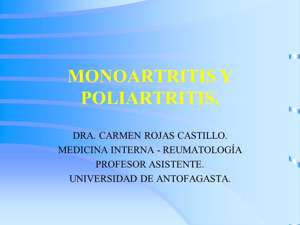 MONOARTRITIS Y POLIARTRITIS.