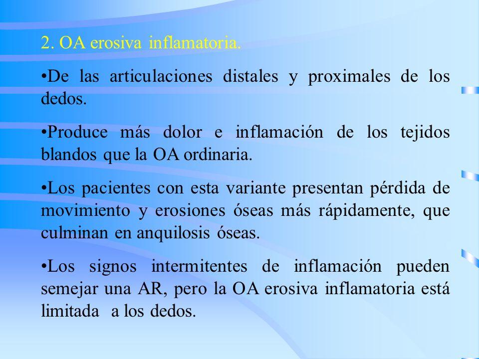 2. OA erosiva inflamatoria.