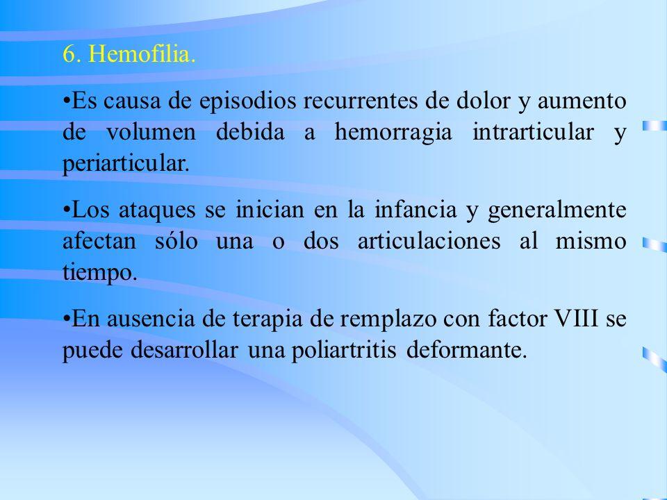 6. Hemofilia. Es causa de episodios recurrentes de dolor y aumento de volumen debida a hemorragia intrarticular y periarticular.