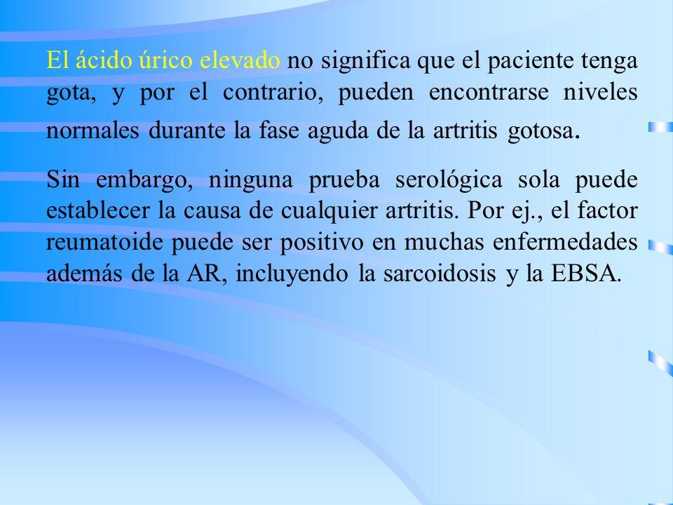 El ácido úrico elevado no significa que el paciente tenga gota, y por el contrario, pueden encontrarse niveles normales durante la fase aguda de la artritis gotosa.
