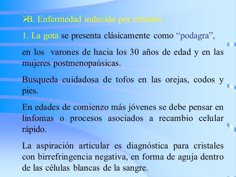 B. Enfermedad inducida por cristales.