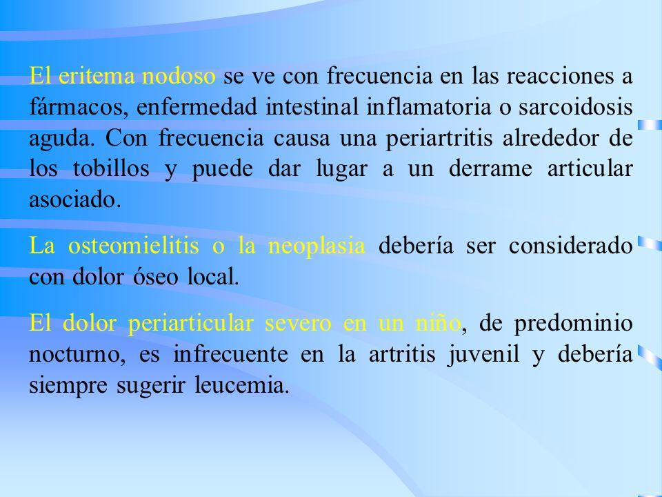 El eritema nodoso se ve con frecuencia en las reacciones a fármacos, enfermedad intestinal inflamatoria o sarcoidosis aguda. Con frecuencia causa una periartritis alrededor de los tobillos y puede dar lugar a un derrame articular asociado.