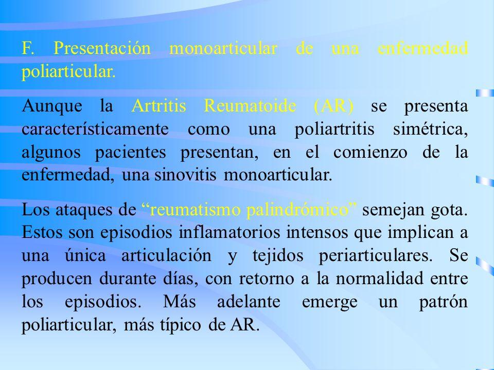 F. Presentación monoarticular de una enfermedad poliarticular.