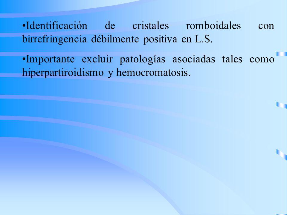 Identificación de cristales romboidales con birrefringencia débilmente positiva en L.S.