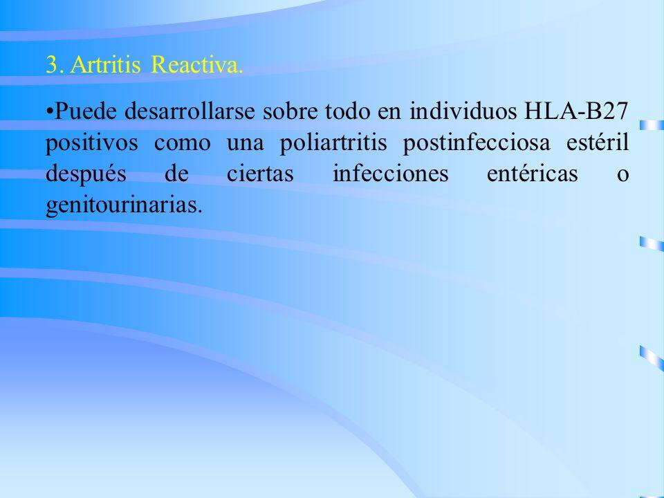 3. Artritis Reactiva.