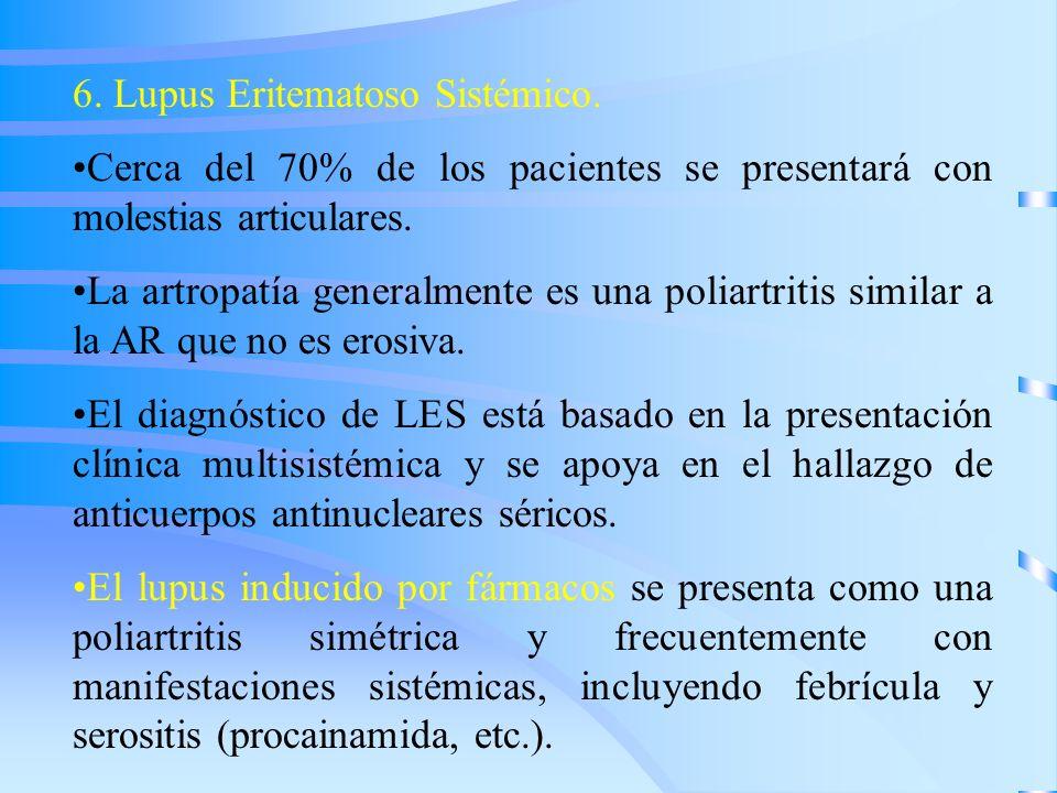 6. Lupus Eritematoso Sistémico.
