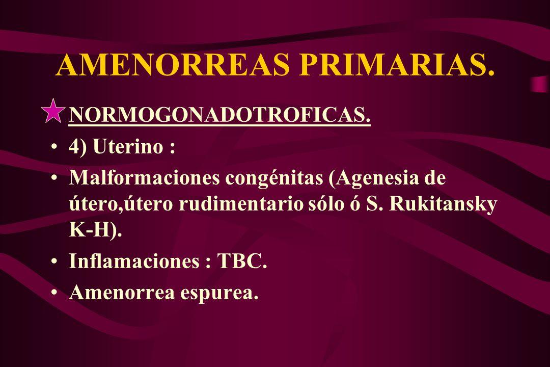 AMENORREAS PRIMARIAS. NORMOGONADOTROFICAS. 4) Uterino :