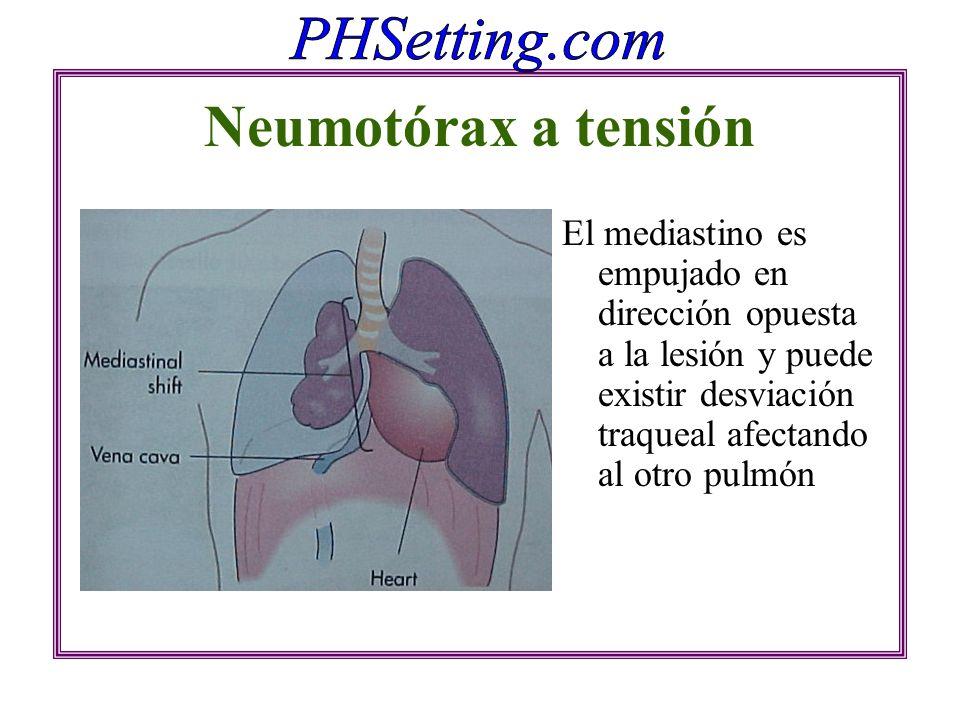 Neumotórax a tensión El mediastino es empujado en dirección opuesta a la lesión y puede existir desviación traqueal afectando al otro pulmón.