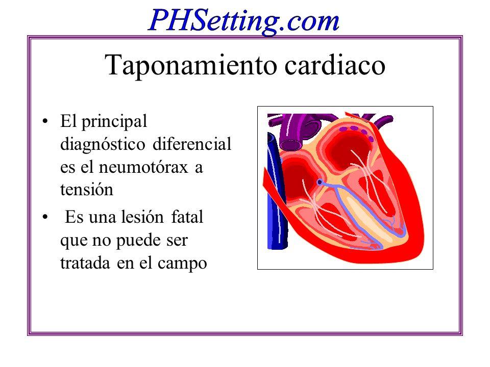 Taponamiento cardiaco