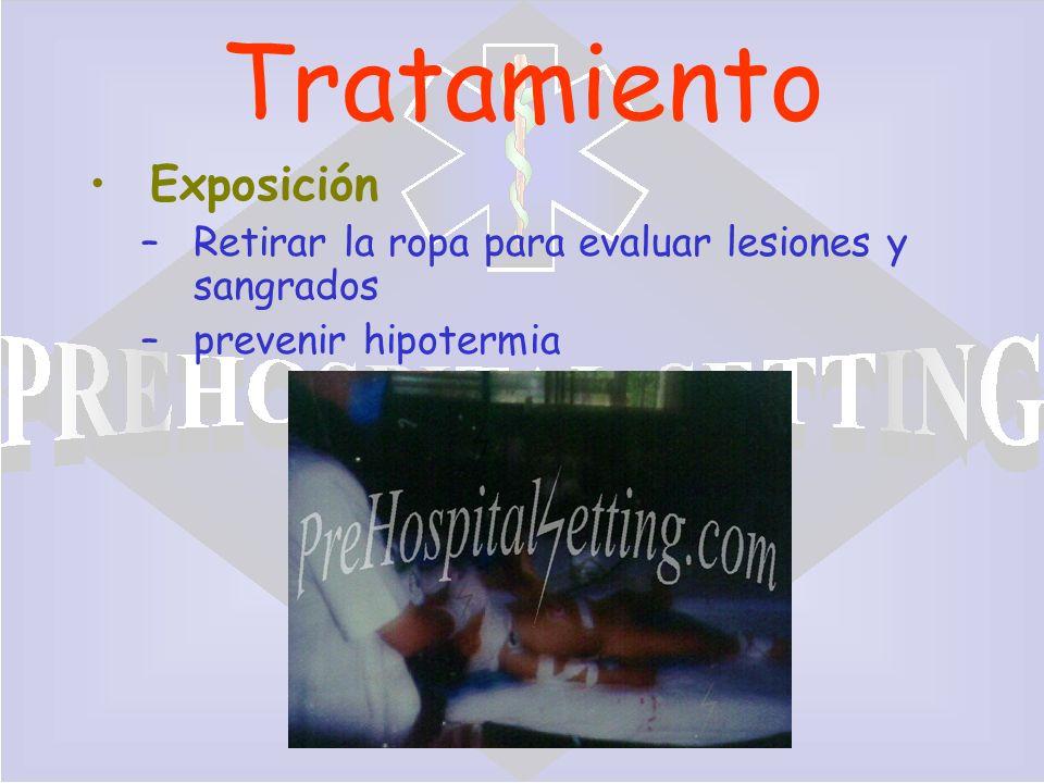 Tratamiento Exposición