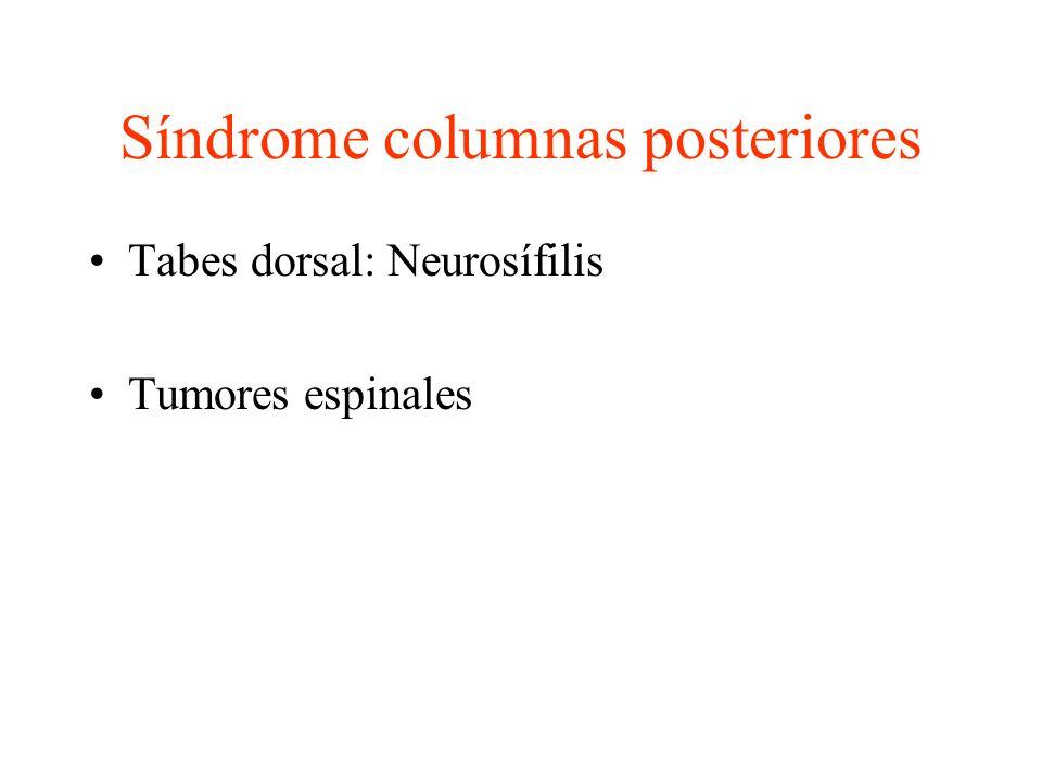 Síndrome columnas posteriores