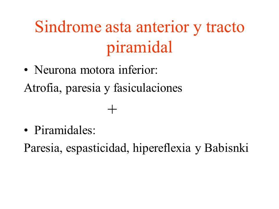 Sindrome asta anterior y tracto piramidal
