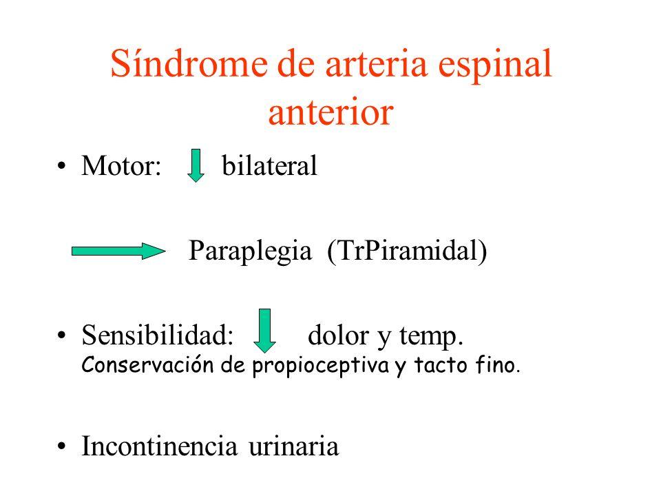 Síndrome de arteria espinal anterior