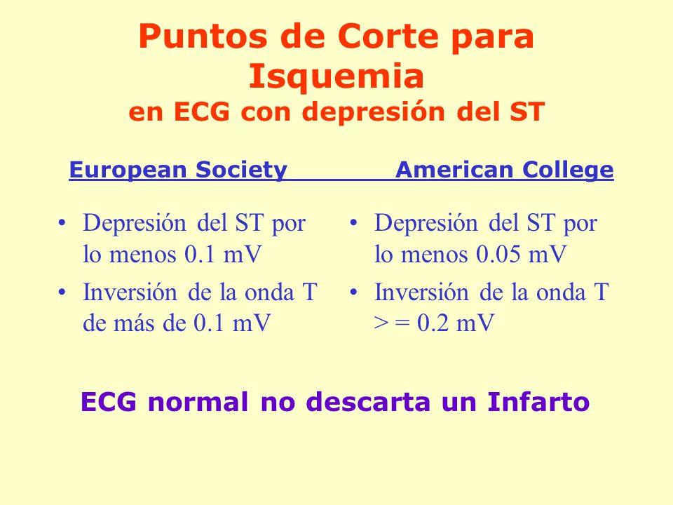 Puntos de Corte para Isquemia en ECG con depresión del ST