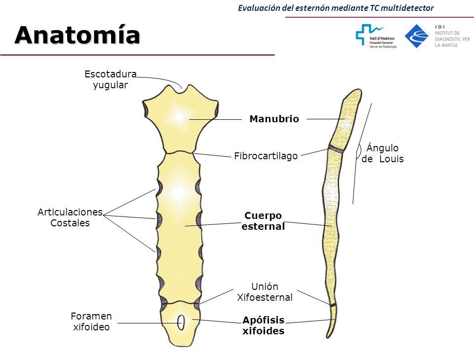 Bonito Anatomía Esternón Imagen - Anatomía de Las Imágenesdel Cuerpo ...