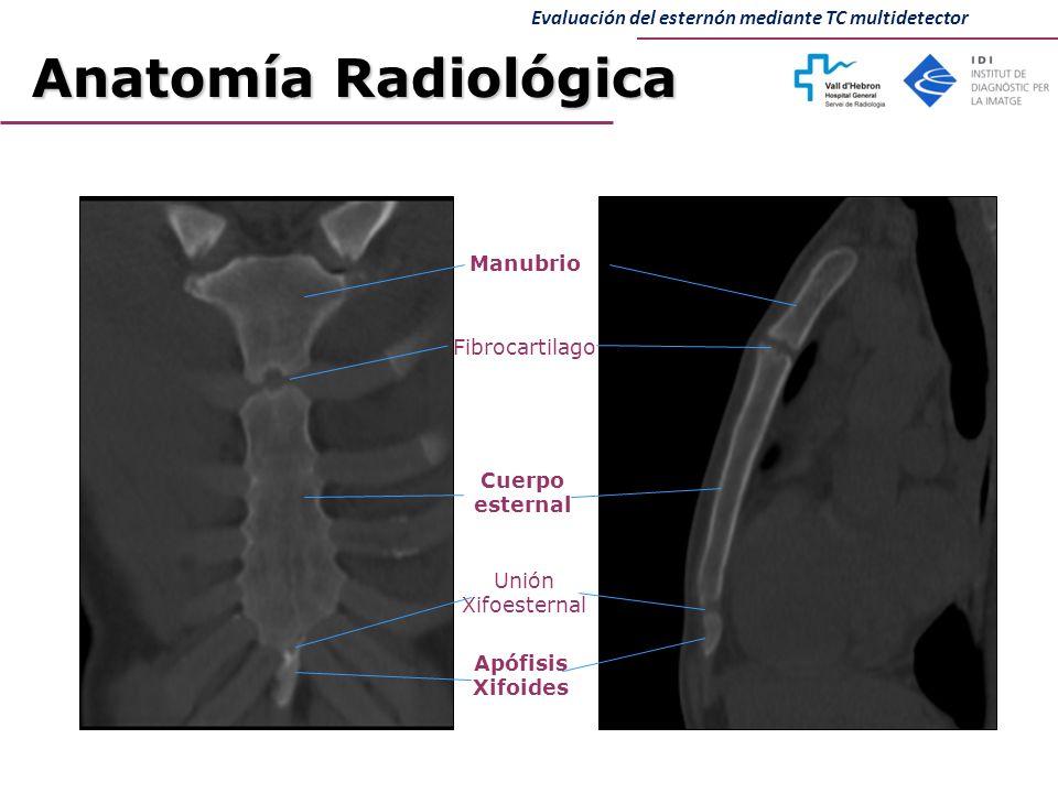 Bonito Imagen Esternón Patrón - Imágenes de Anatomía Humana ...
