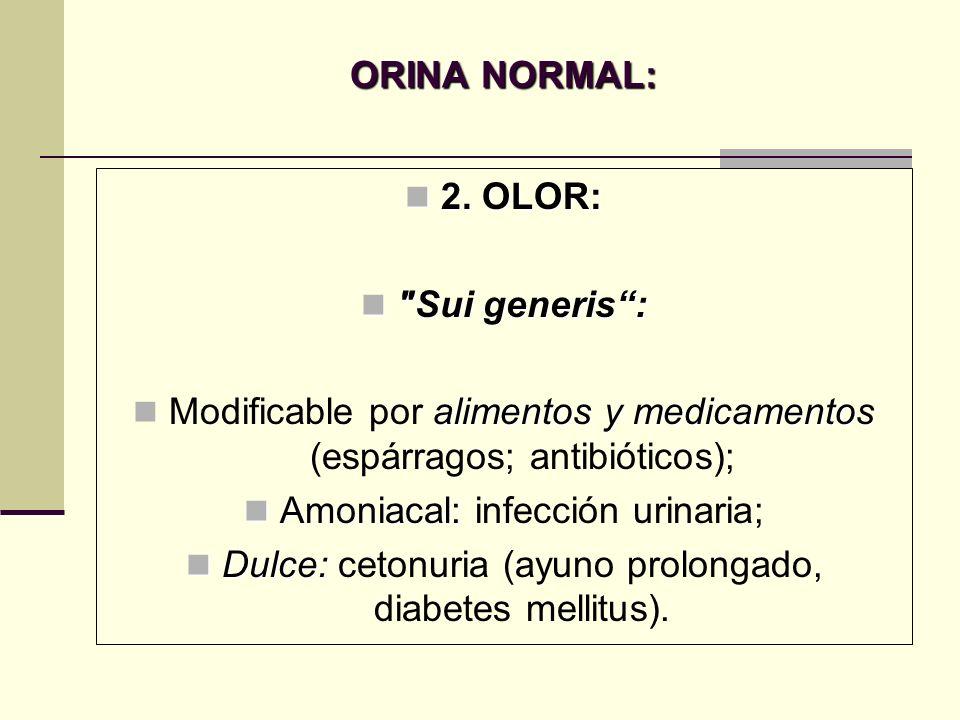 ORINA NORMAL: 2. OLOR: Sui generis :