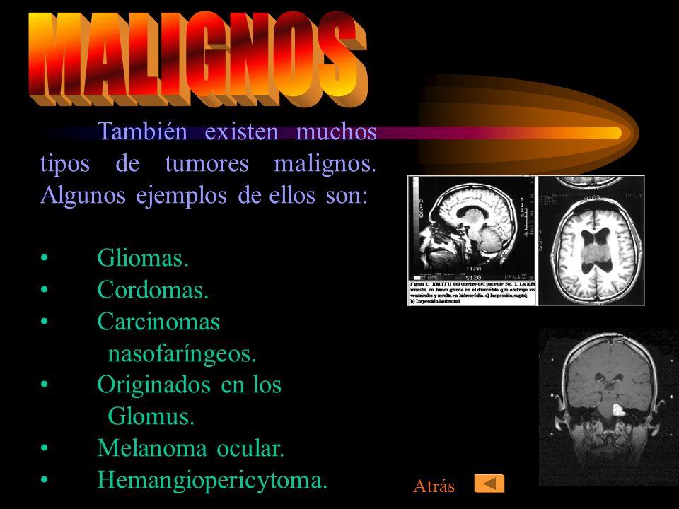 MALIGNOSTambién existen muchos tipos de tumores malignos. Algunos ejemplos de ellos son: Gliomas. Cordomas.