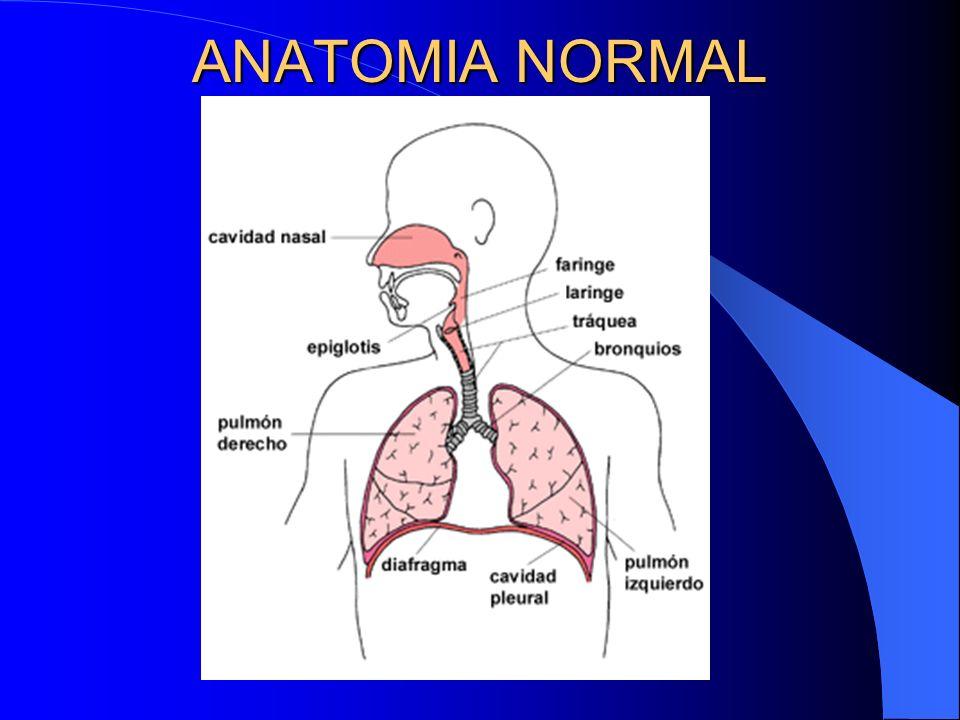 ANATOMIA NORMAL