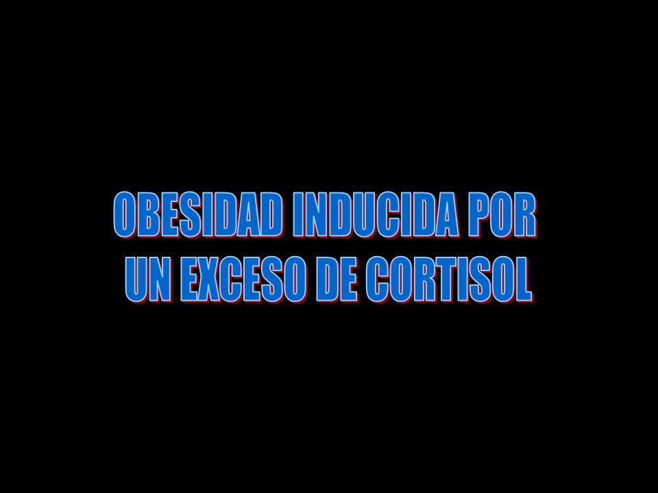 OBESIDAD INDUCIDA POR UN EXCESO DE CORTISOL
