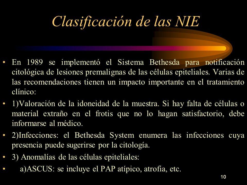 Clasificación de las NIE