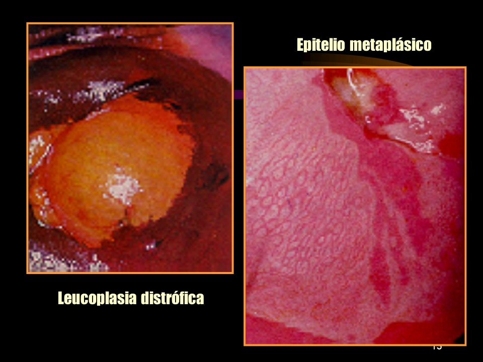 Leucoplasia distrófica