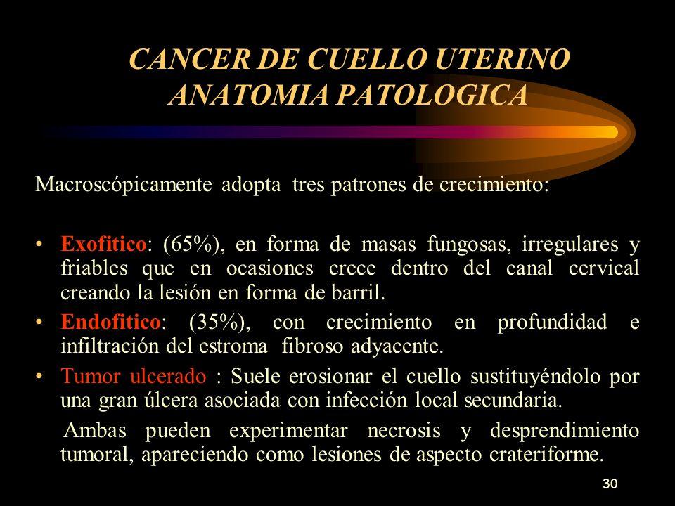 CANCER DE CUELLO UTERINO ANATOMIA PATOLOGICA