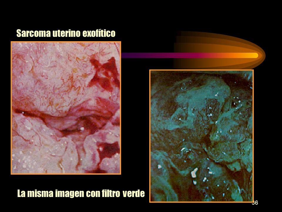 Sarcoma uterino exofítico