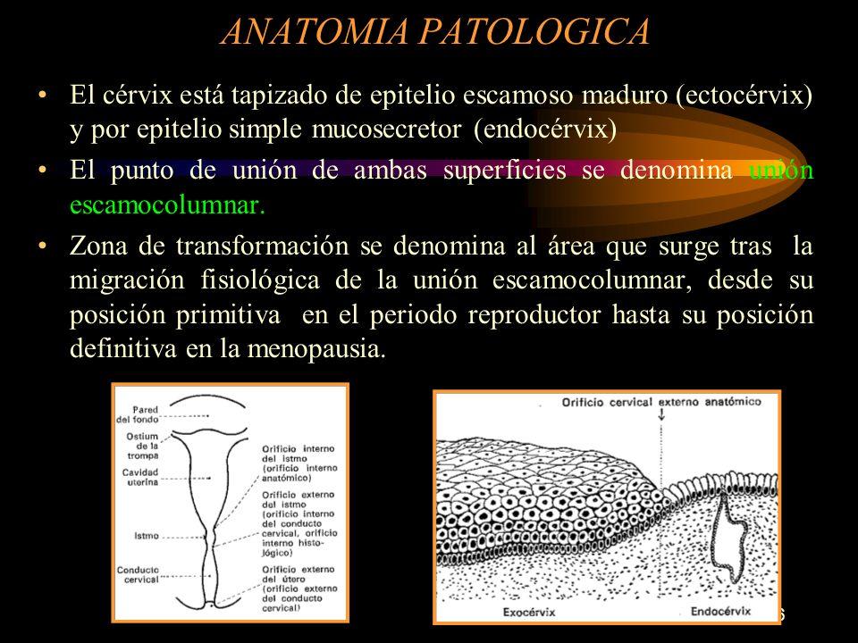 ANATOMIA PATOLOGICA El cérvix está tapizado de epitelio escamoso maduro (ectocérvix) y por epitelio simple mucosecretor (endocérvix)