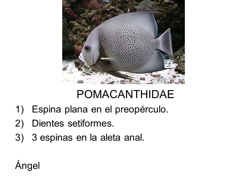 POMACANTHIDAE Espina plana en el preopérculo. Dientes setiformes.