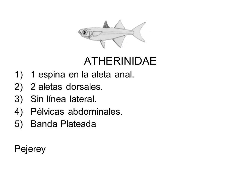 ATHERINIDAE 1 espina en la aleta anal. 2 aletas dorsales.
