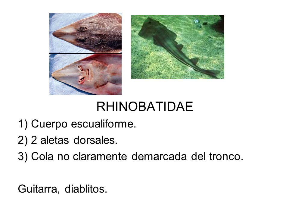 RHINOBATIDAE 1) Cuerpo escualiforme. 2) 2 aletas dorsales.