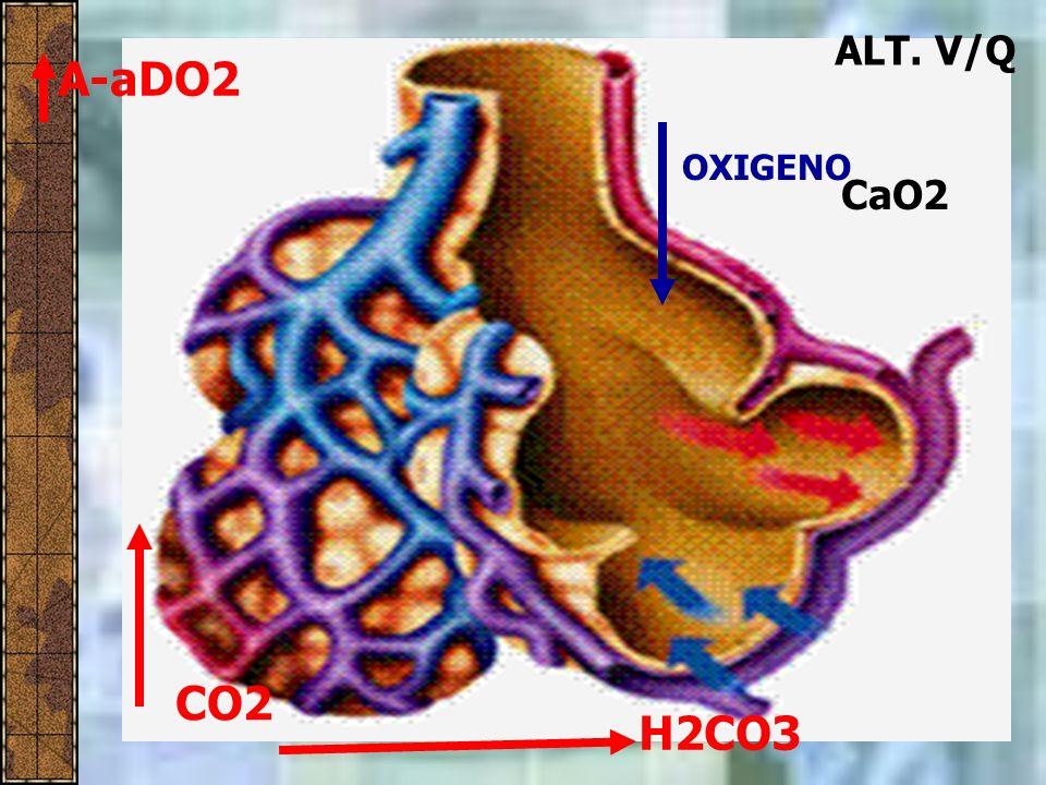 ALT. V/Q A-aDO2 OXIGENO CaO2 CO2 H2CO3