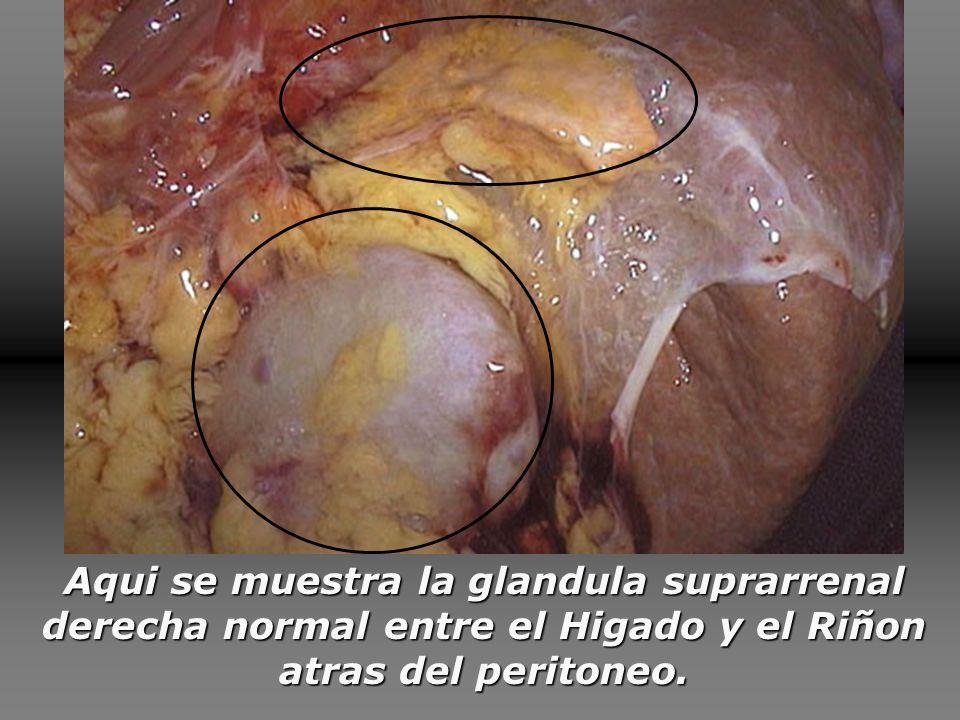 Aqui se muestra la glandula suprarrenal derecha normal entre el Higado y el Riñon atras del peritoneo.
