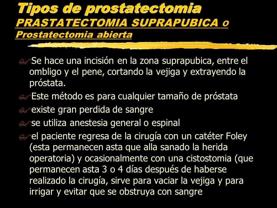 Tipos de prostatectomia PRASTATECTOMIA SUPRAPUBICA O Prostatectomia abierta