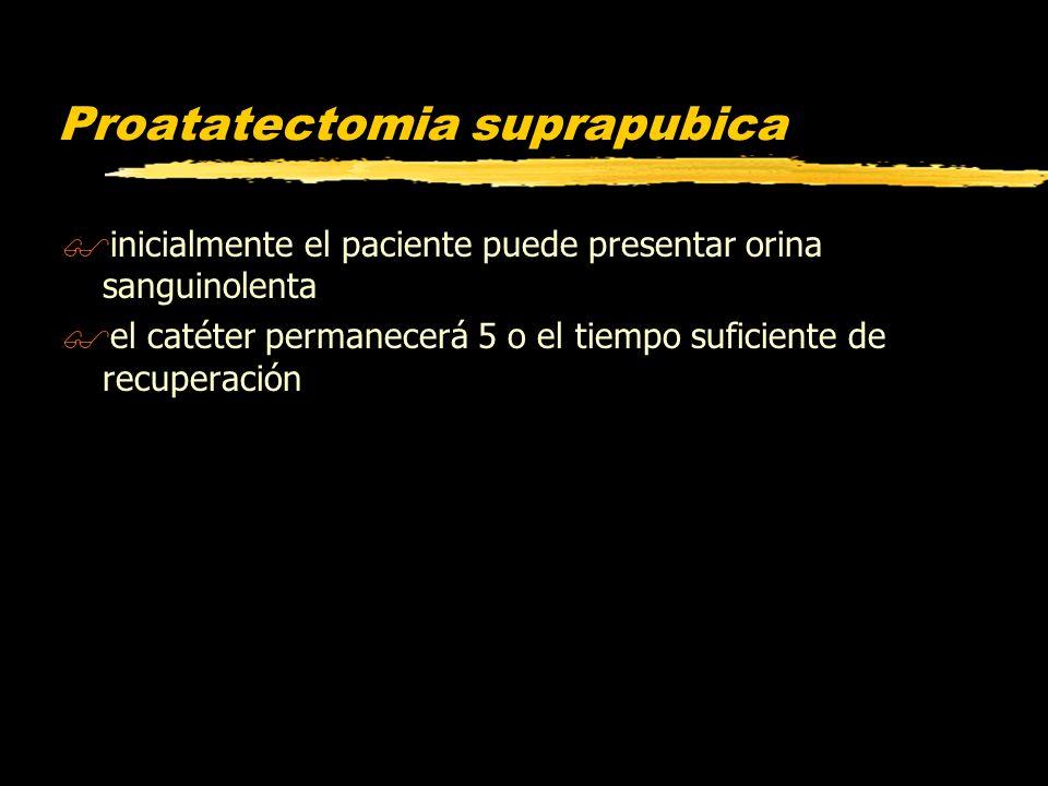 Proatatectomia suprapubica