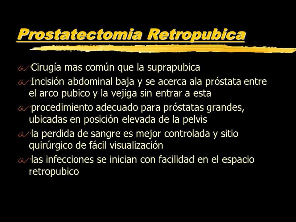 Prostatectomia Retropubica