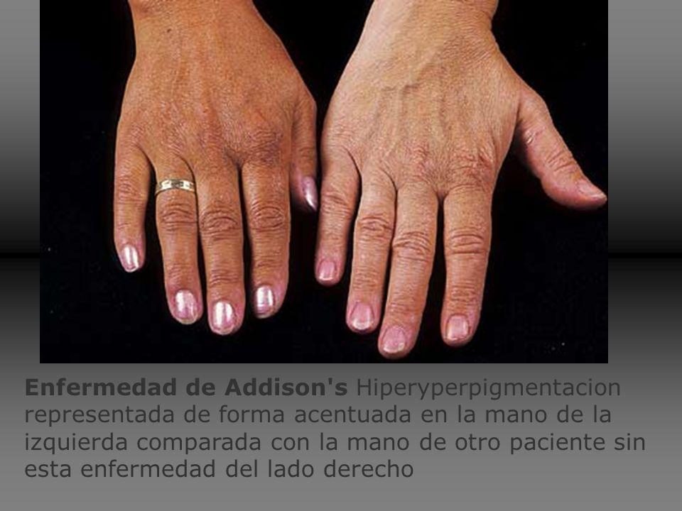Enfermedad de Addison s Hiperyperpigmentacion representada de forma acentuada en la mano de la izquierda comparada con la mano de otro paciente sin esta enfermedad del lado derecho