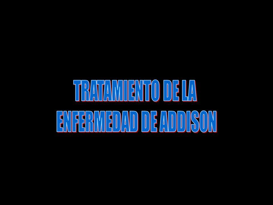 TRATAMIENTO DE LA ENFERMEDAD DE ADDISON