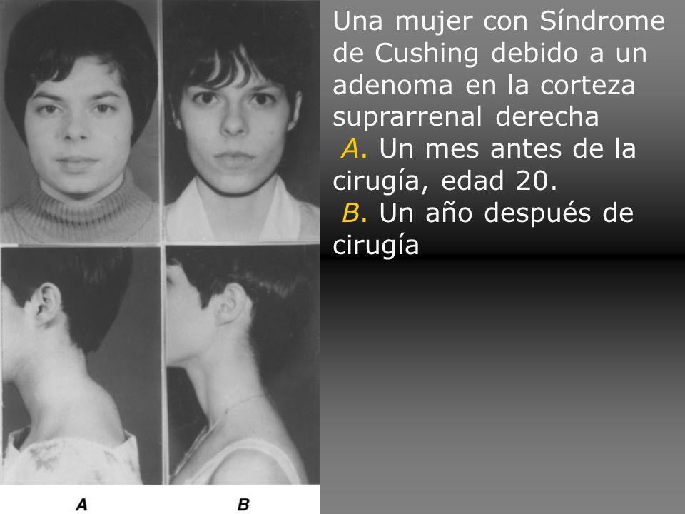 Una mujer con Síndrome de Cushing debido a un adenoma en la corteza suprarrenal derecha