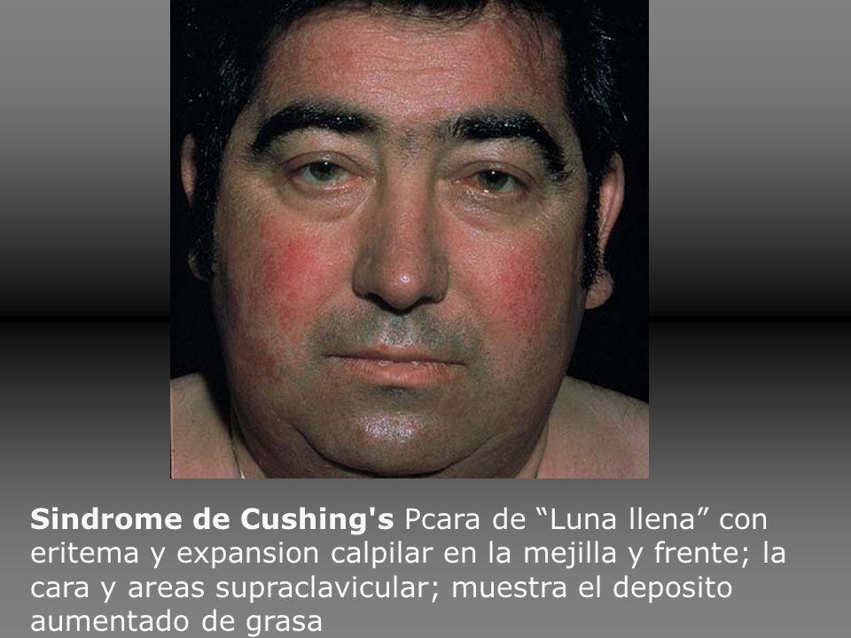 Sindrome de Cushing s Pcara de Luna llena con eritema y expansion calpilar en la mejilla y frente; la cara y areas supraclavicular; muestra el deposito aumentado de grasa