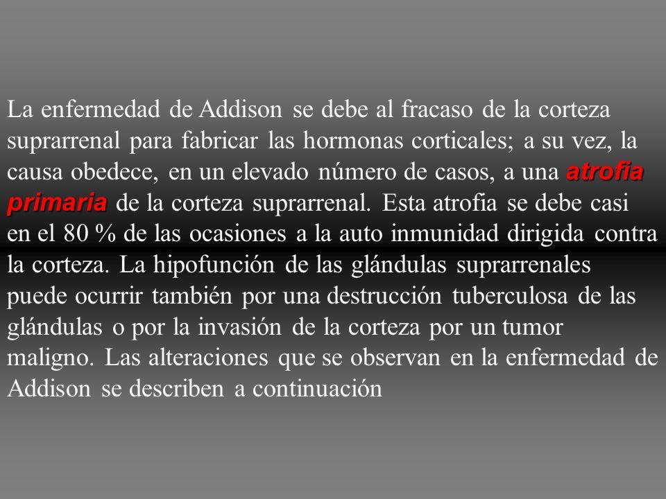 La enfermedad de Addison se debe al fracaso de la corteza suprarrenal para fabricar las hormonas corticales; a su vez, la causa obedece, en un elevado número de casos, a una atrofia primaria de la corteza suprarrenal.