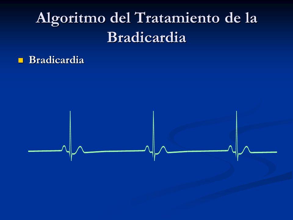 Algoritmo del Tratamiento de la Bradicardia