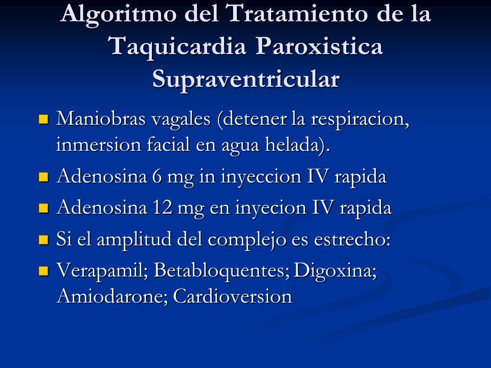 Algoritmo del Tratamiento de la Taquicardia Paroxistica Supraventricular