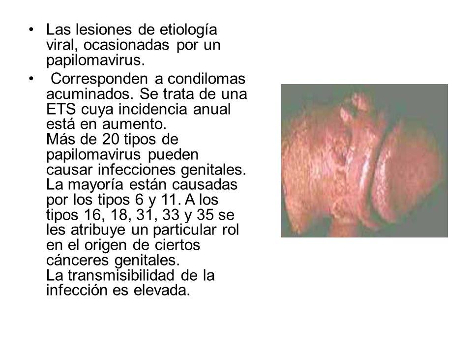 Las lesiones de etiología viral, ocasionadas por un papilomavirus.