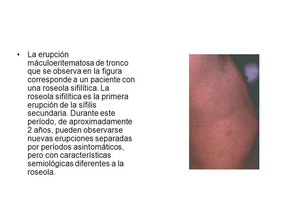 La erupción máculoeritematosa de tronco que se observa en la figura corresponde a un paciente con una roseola sifilítica.