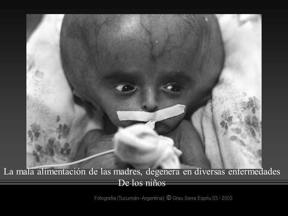 La mala alimentación de las madres, degenera en diversas enfermedades
