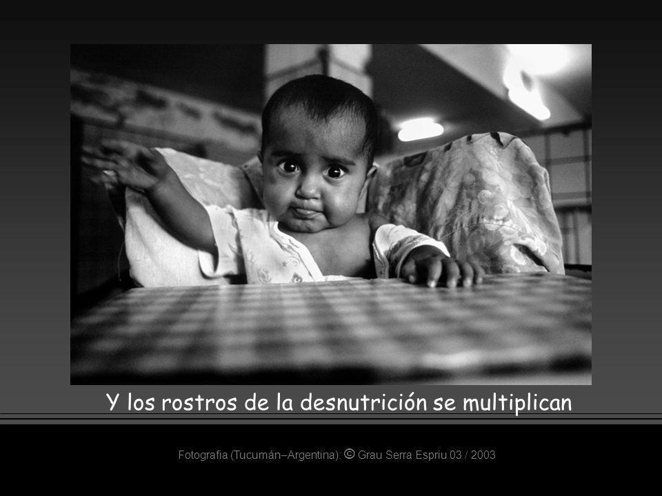 Y los rostros de la desnutrición se multiplican